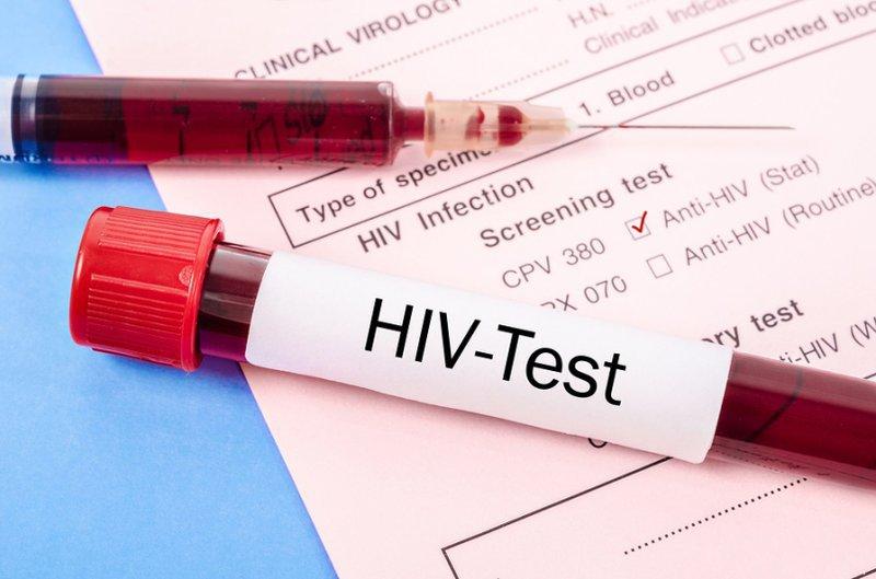 Thời điểm nào xét nghiệm HIV cho kết quả chính xác nhất?   Vinmec
